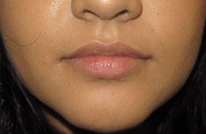 Injectable Fillers Before